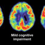 """Neuroscience News: """"Întinerirea"""" creierului afectat de maladia Alzheimer poate fi posibilă"""